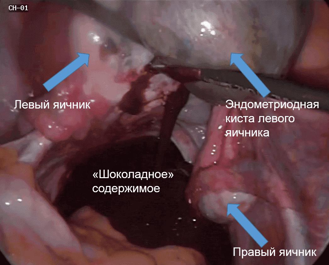 Лечение эндометриоидной кисты яичника