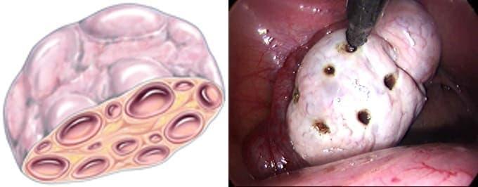 После лапароскопии при склерокистозе яичников возможно зачатие ребенка