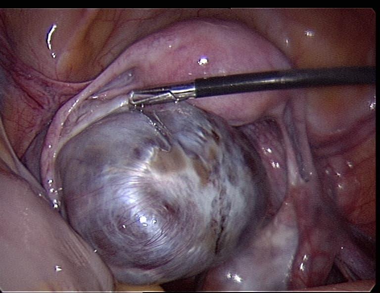 Хирургическое лечение гранулезоклеточной опухоли яичника – аднексэктомия