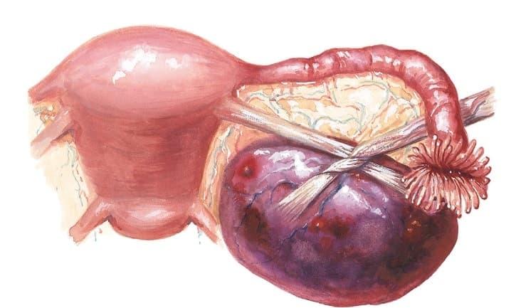 Боль в яичниках при ходьбе и беге может говорить о частичном перекруте кисты яичника